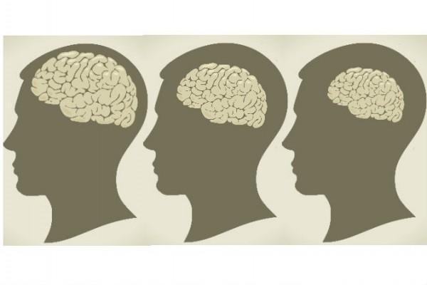 Beynimiz her yıl yüzde 0,4 oranında küçülmektedir. (Vladgrin/iStock; Epoch Times tarafından düzeltilmiştir)
