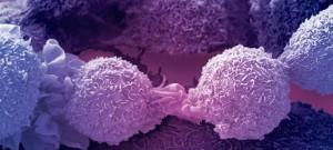 Kanseri Çin Tıp İlkeleri ile Tedavi Etmek